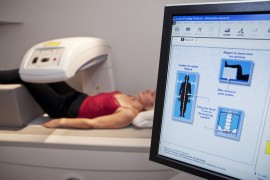 Third of Older Women on AIs Not Getting Bone Density Testing