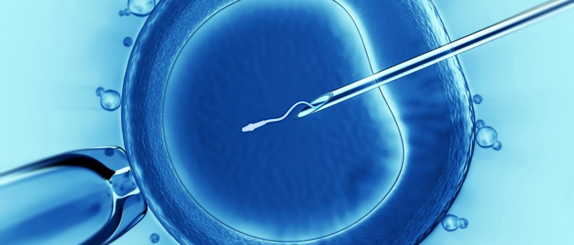 IVF Not Linked to Breast Cancer Risk