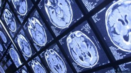 Evidence That Chemo Decreases Brain Activity During Multitasking
