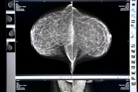 Molecular Breast Imaging Ups Detection in Dense Breast Tissue