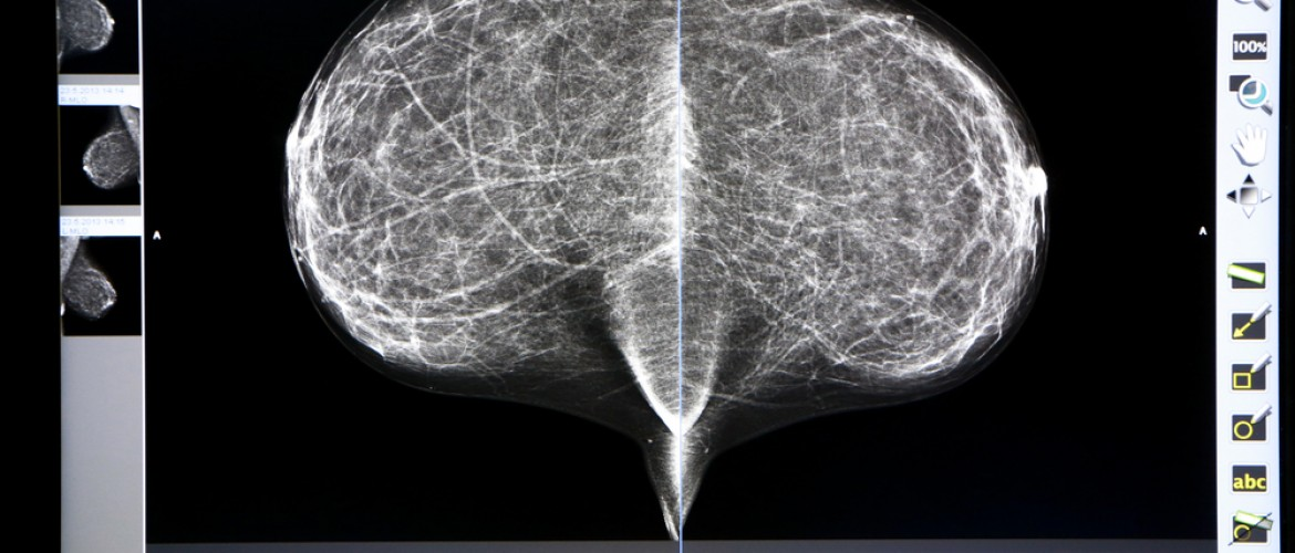 Breast Density Strongly Genetic; Cancer Risk Not Restricted to Dense Tissue