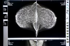 Molecular Breast Imaging Ups Detection in Dense Breast Tissue